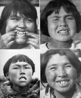 mongolóide